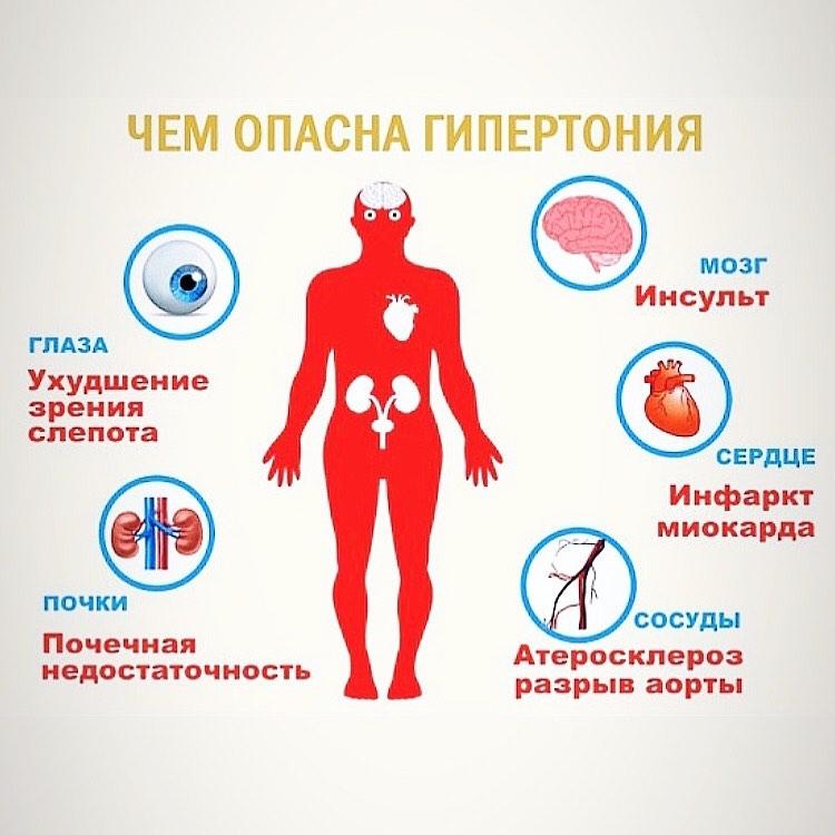 17 мая – Всемирный день борьбы с артериальной гипертонией